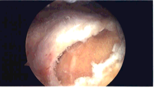 rotator cuff tear arthroscopic